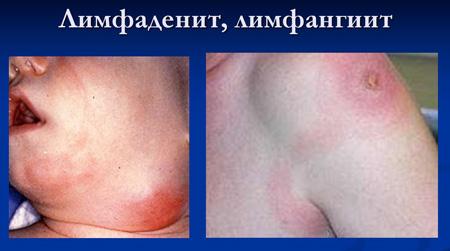 Лимфаденит и лимфангит