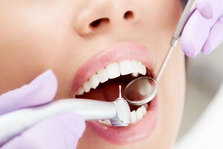 Наличие кариесных зубов
