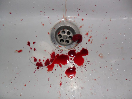 Обильное кровотечение из горла