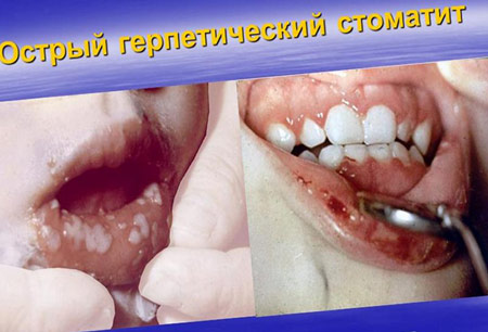 Острый герпетический стоматит