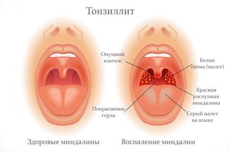 как выглядят здоровые миндалины