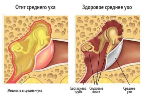 Отит среднего уха заложенность уха