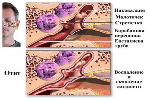 Патология ушной полости