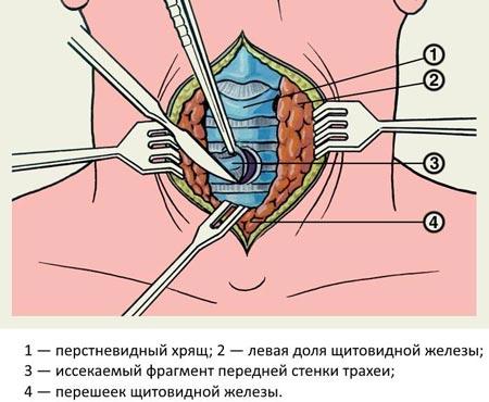 Проведение трахеостомии