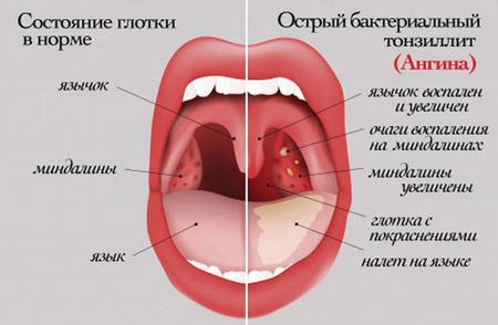 Проявление ангины
