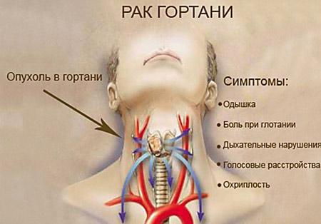 Рак гортани на разных стадиях