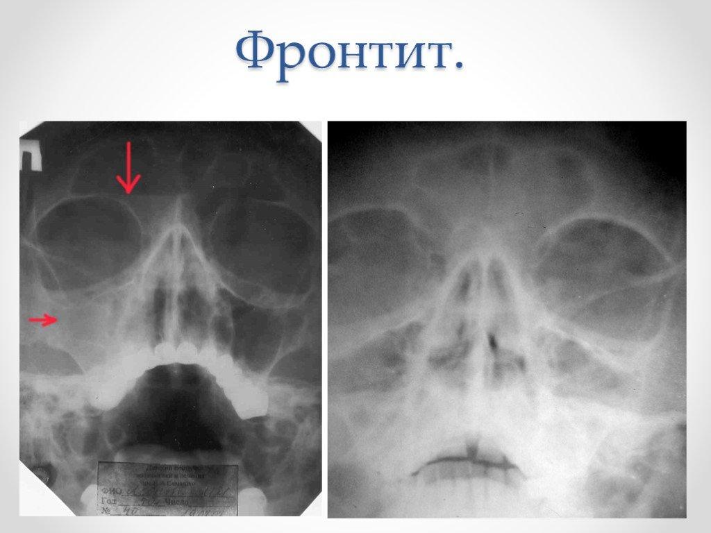 рентген лобной пазухи