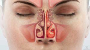 синусит носовой пазухи