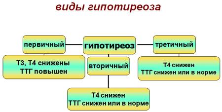 Стадии гипотиреоза