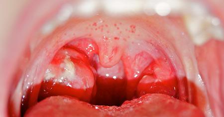 Сыпь в горле