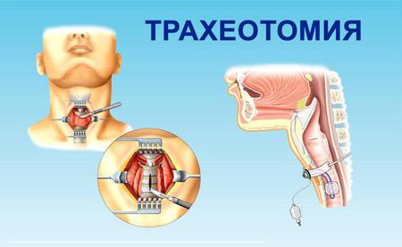 Трахеотомия