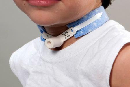 Трахиостома для детей