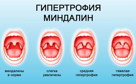 Увеличение миндалин