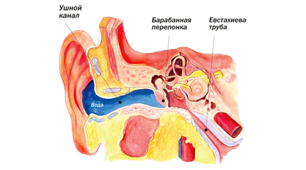 Новорожденному попала в ухо вода что делать
